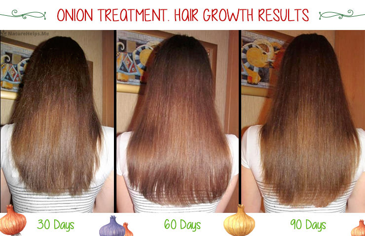 onion-juice-hair-growth-before-after-1