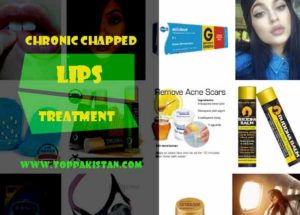 Chronic Chapped Lips Treatment