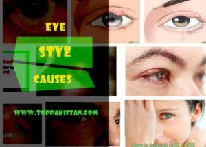 Eye Stye Causes