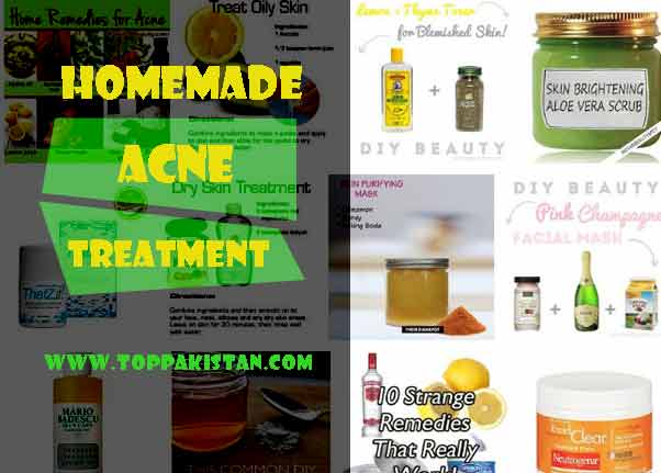 Natural or Homemade Acne Treatment