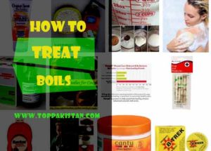 How To Treat Boils At Home