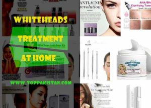 Whiteheads Treatment At Home