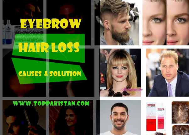 Eyebrow Hair Loss Causes and Regrowth Solution