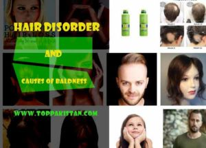 Hair Disorder And Causes of Baldness