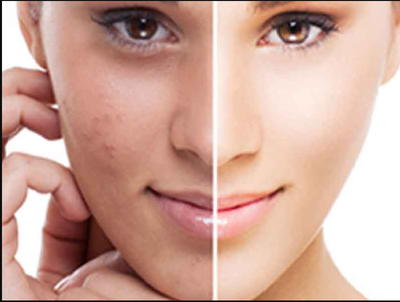 How To Removed Dark Spots On Face Overnight
