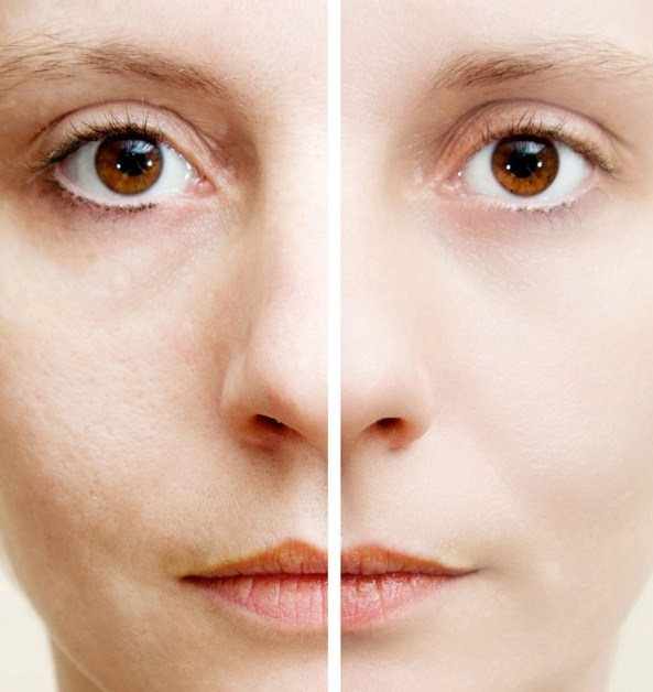 Uneven Skin Tone Causes And Solution