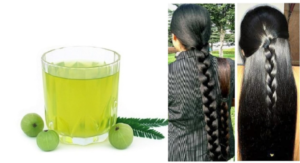 Best Plants For Hair Growth