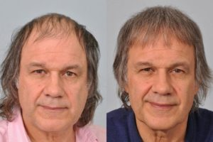 Best Hair Transplant Surgeons In Faisalabad