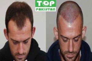 Best Hair Transplant Surgeons In Gujranwala