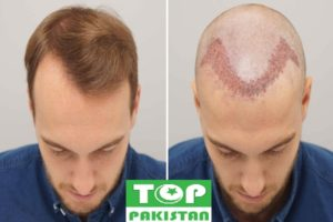 Best Hair Transplant Surgeons In Hyderabad