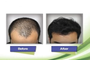 Best Hair Transplant Surgeons In Karachi
