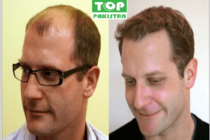 Best Hair Transplant Surgeons In Mardan