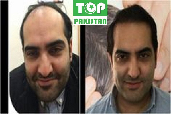 Best Hair Transplant Surgeons In Sialkot