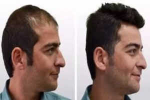 Hair Transplant Surgeons In Lahore