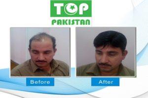 Best Hair Transplant Surgeons In Peshawar