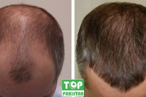 Best Hair Transplant Surgeons In Bahawalpur
