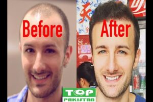 Best Hair Transplant Surgeons In Okara