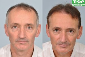 Best Hair Transplant Surgeons In Quetta