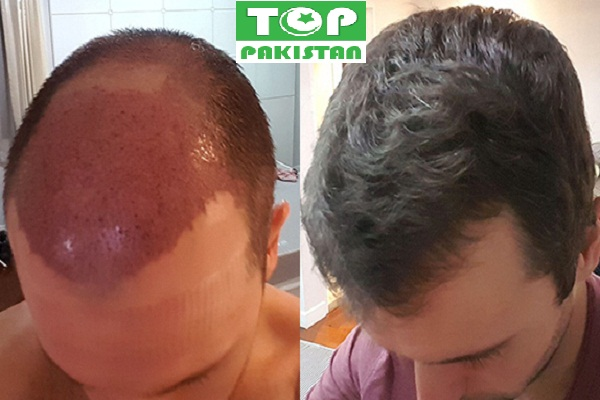 Best Hair Transplant Surgeons In Rahim Yar Khan
