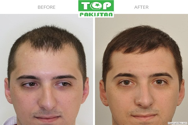 Best Hair Transplant Surgeons In Sahiwal